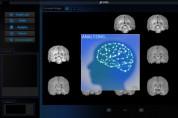 휴런, 세계 최초 파킨슨 분석/진단 AI 소프트웨어 유럽 CE 인증 획득